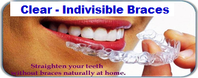 Invisibel-braces-by-Dr-Agrvat-Dental-Tourism-Ahmedabad-gujarat-India-2